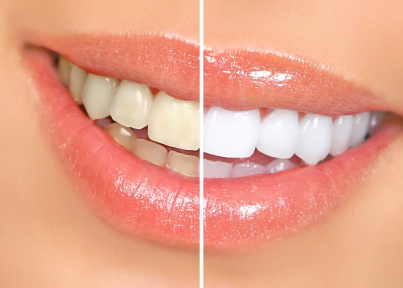 Teeth Whitening  Crofton, MD